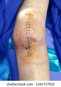 Knee surgery, Wound and stitches after Knee Arthroplasty.