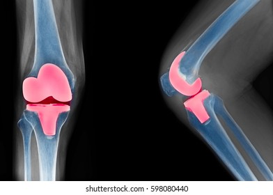 knee x-ray show total knee replacement