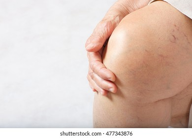 Knees of senior woman between 70 and 80 years old.Closeup