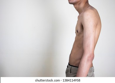 Kyphotic hunchback man, medical profession concept