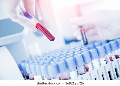 Lab worker preparing test blood for detection of antibodies and infections Corona virus.