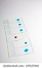 Laboratory glass slide with red fluid on/laboratory test/studio shoot