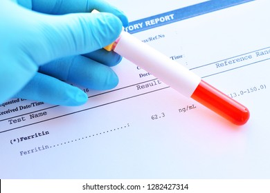 Laboratory result of ferritin test with blood sample