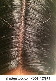 Lace Closure Wig Part