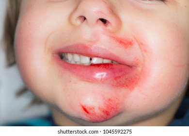 Laceration and abrasive burn in the face of a crying young toddler