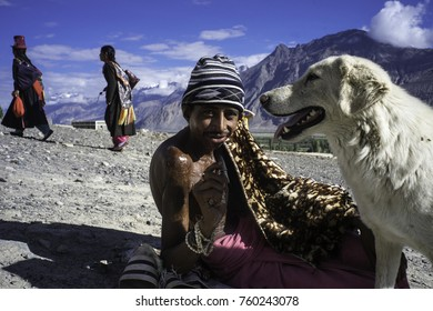 Ladakh, India, Nubra valley, July 2017, a beggar with big burning scars on his shoulder sits with his dog on the ground while two women in traditional clothing pass in the background
