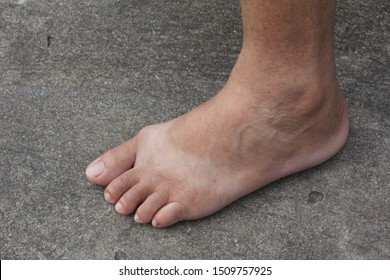 A lady foot on concrete floor. There's a sun burning line on her foot.