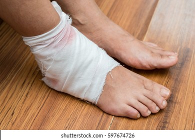 lady with a wrapped foot on floor