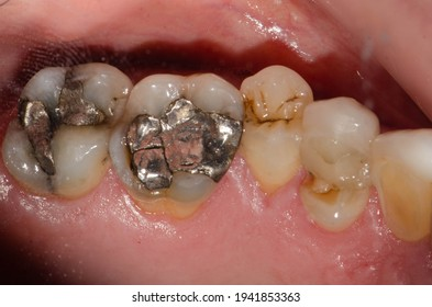 A large amalgam or metal-mercury fillings on molar teeth and premolar tooth fracture