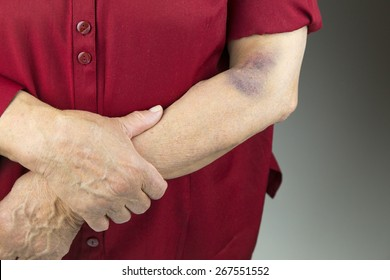 Large bruise on human arm. Injection bruises. Doctor and patient