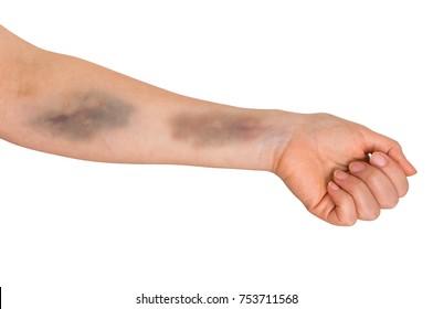 Large bruise on human arm. Injection bruises.