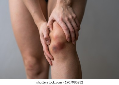Large bruise on the knee