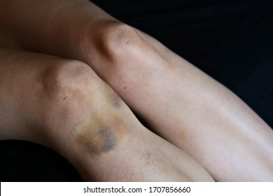 A large bruise on a woman's leg. Violence against women concept image.