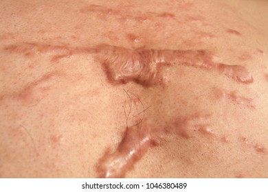 Large Keloid Scar developed on the upper chest of a man after he squeezed a pimple