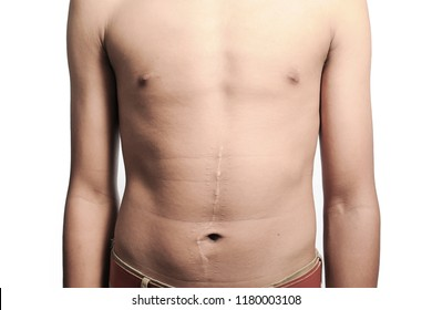 A large scar from abdominal surgery Out on a white background