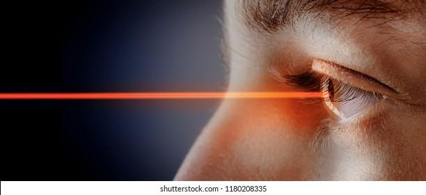 laser beam  in the eye