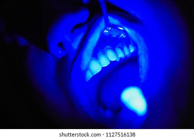 laser dental therapy