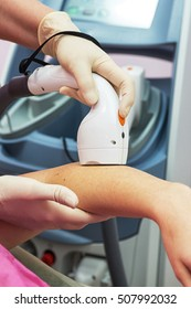 Laser epilation or photo epilation of woman hand