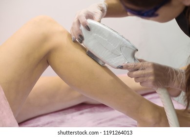 laser hair removal on legs, photoepilation of legs, ips laser