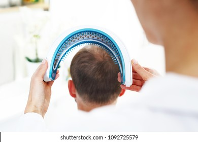 Laser irradiation of the scalp. Care treatment for strengthening hair onions ..