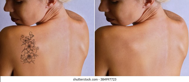 Laser tattoo removal before and after. Beautiful young woman with tattoo on her back