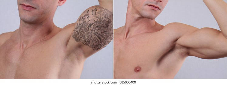 Laser tattoo removal before and after. Attractive Man with tattoo on his arm
