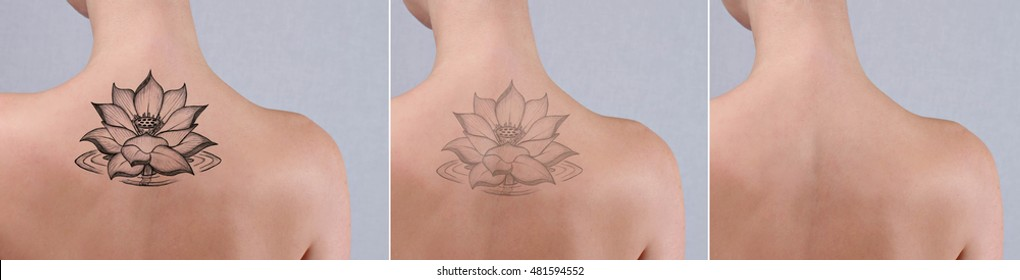 Laser tattoo removal before and after. Beautiful young woman with tattoo on her back.