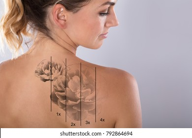 Laser Tattoo Removal On Woman's Shoulder Against Gray Background