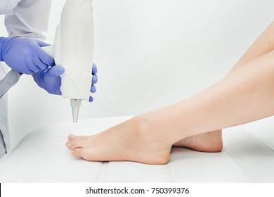 Laser treatment of nail fungus