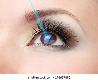 Laser vision correction. Woman's  eye.