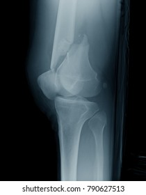 Lateral knee x-ray image showing distal femoral fracture