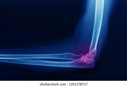 a lateral plain x-ray or radiograph of an elbow in flexion position showing normal bones and joints. No sign of fracture, infection or inflammation.