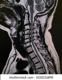 Lateral position cervical spine MRI, technical x-ray, with the spine and bone have a problem.