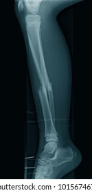 Lateral views X-ray image of broken leg, a 9 year old football player