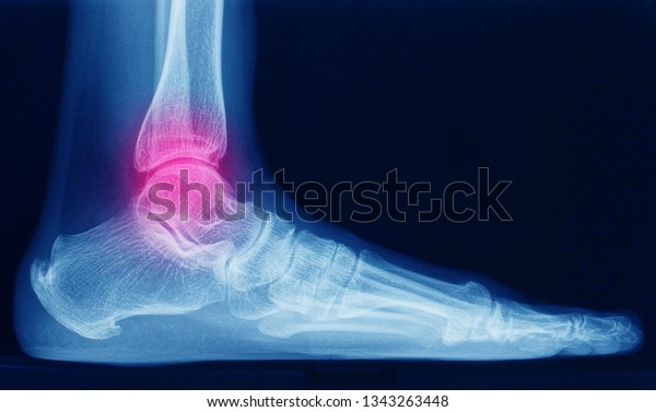 Lateral Xray Radiograph Ankle Showing Anatomy Stock Photo Edit Now 1343263448