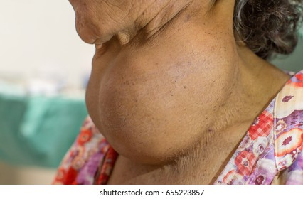 Lateral Zooming closeup view of enlarged thyroid gland on old Asian female 's neck attended with slow progressive growing neck lump and upper airway obstruction