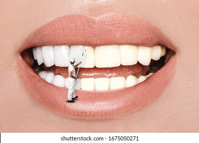 Laughing woman mouth with great teeth over white background. Whitening concept. Dentistry.