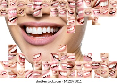 Laughing women and men with great teeth over white background. Healthy beautiful male and female smile. Teeth health, whitening, prosthetics and care. Set of perfect smiles. Happy people, detail.