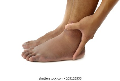 Left ankle sprain swelling from trauma on white background.