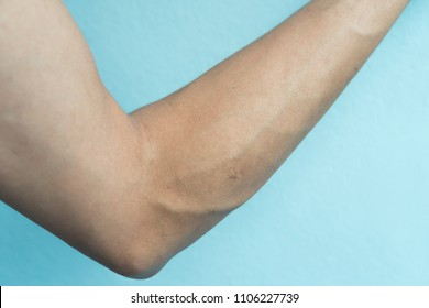 Left arm of men with vein and scar from abscess on blue background.