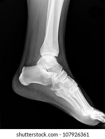 Left foot MRI - X-ray resonance - Medical Image