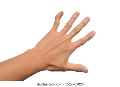The left hand little finger or pinky finger is deformity isolated on white background.