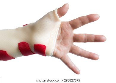 Left hand palm and spread fingers with wrist and thumb splint