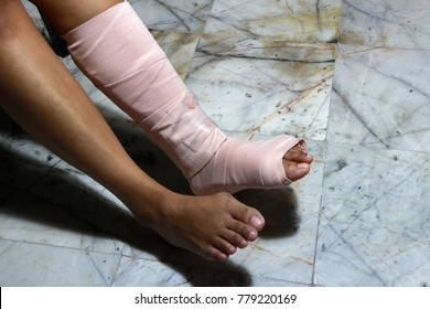 Left legs and feet be in plaster cast because splintered, splint is a strip of rigid material used for supporting and immobilizing a broken bone when it has been set.