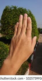 Left little finger fracture.