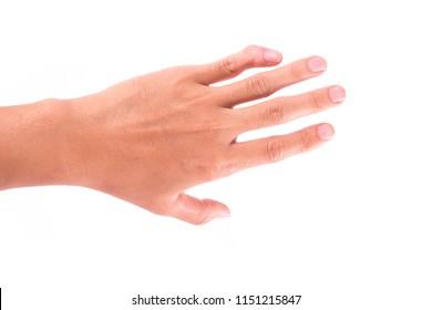 Left little finger fracture isolated on white background.