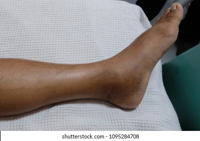 Left lower limb oedema secondary to lymphatic obstruction.