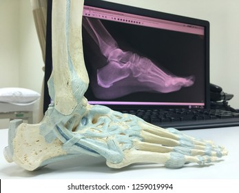 a left-sided foot model with foot x-ray on the background in a clinic