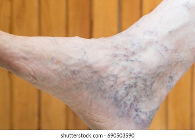 The leg of an adult person looks painful because of swollen blue veins. Varicose veins