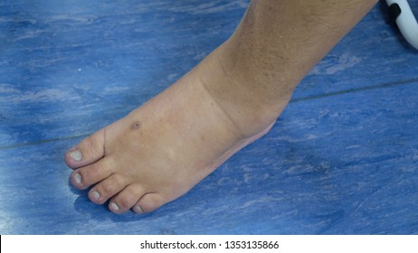 Leg Oedema in patient with heart failure.